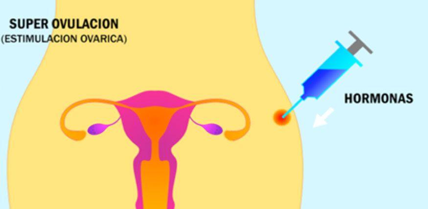 super-estimulacion-ovarica