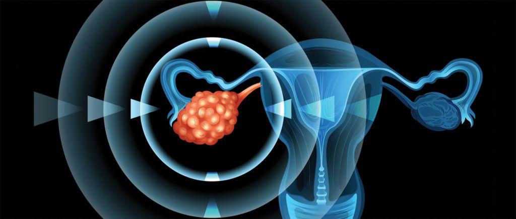 hiperestimulación FIV estimulación suave